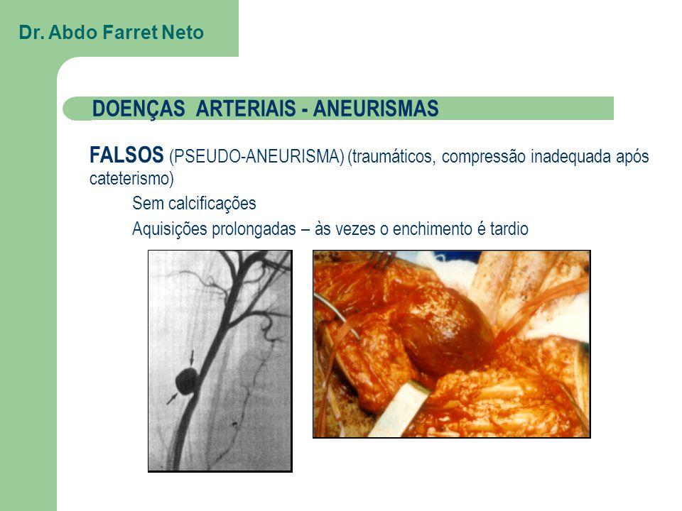 FALSOS (PSEUDO-ANEURISMA) (traumáticos, compressão inadequada após cateterismo) Sem calcificações Aquisições prolongadas – às vezes o enchimento é tardio Dr.
