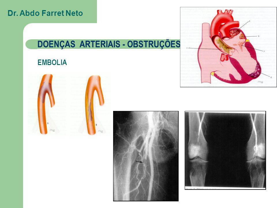 DOENÇAS ARTERIAIS - OBSTRUÇÕES TROMBOSE => ATEROMATOSE Dr. Abdo Farret Neto