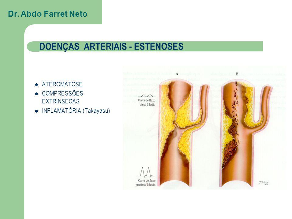 ATEROMATOSE Calcificações Fluxo lento e por colaterais DOENÇAS ARTERIAIS - ESTENOSES Dr.