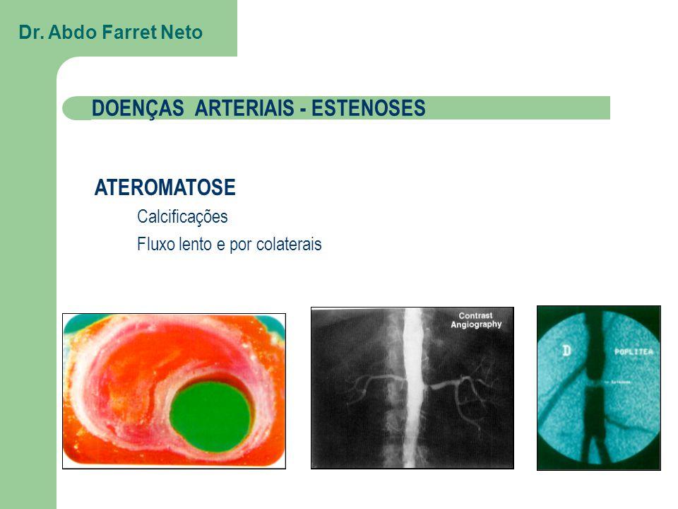 MECANISMO CONTUSÕES/LUXAÇÕES FRATURAS TRAUMA VASCULAR Dr. Abdo Farret Neto