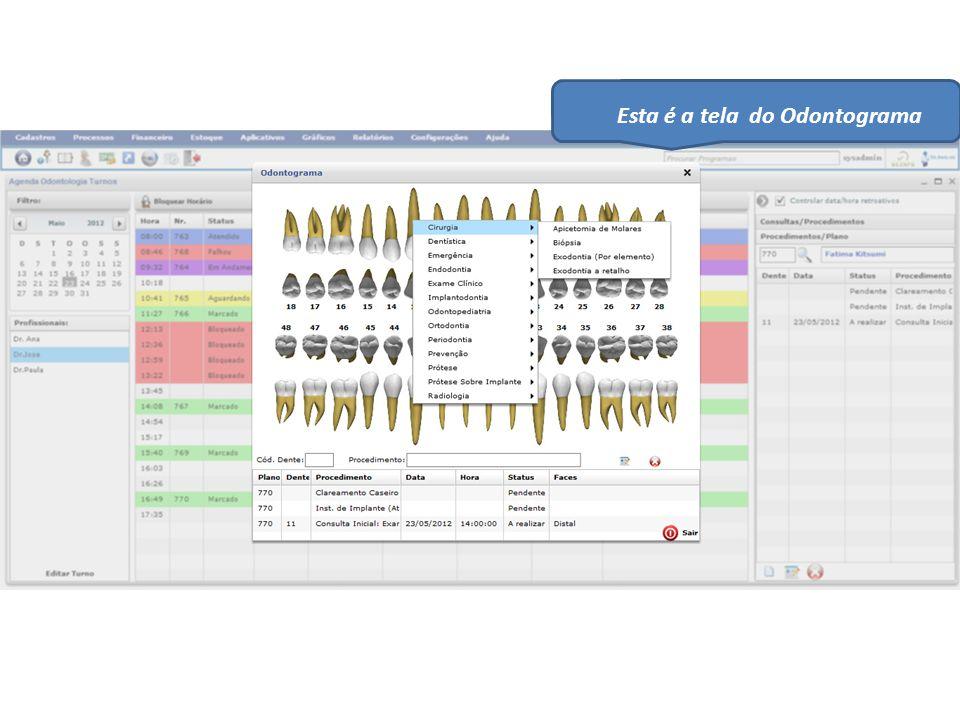 Esta é a tela do Odontograma