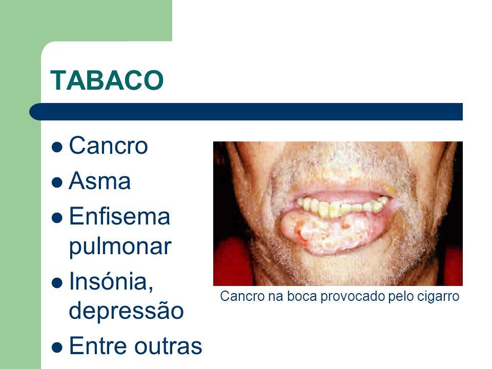 TABACO  Cancro  Asma  Enfisema pulmonar  Insónia, depressão  Entre outras Cancro na boca provocado pelo cigarro