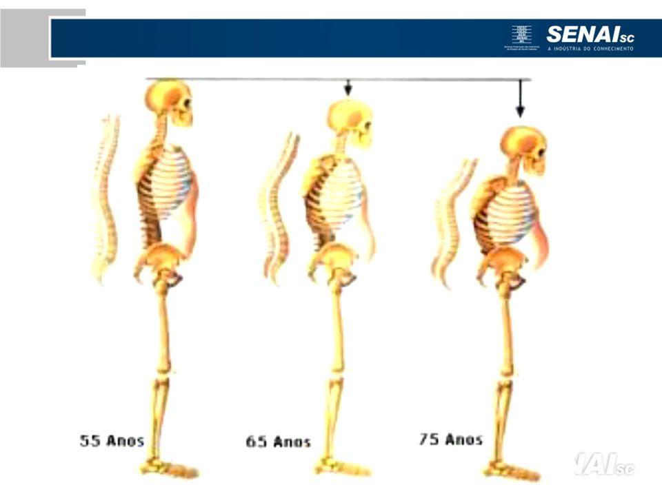 O ideal é que o pescoço dobre- se para a frente, no máximo, de 20º a 30º, e que fique em torno de 15º, se o trabalho for prolongado.