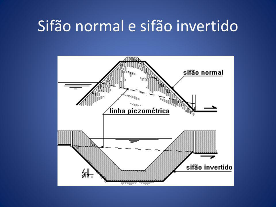 Sifão normal