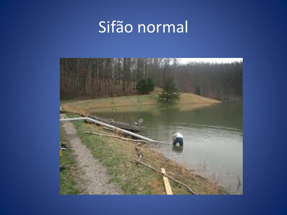 Sifão normal