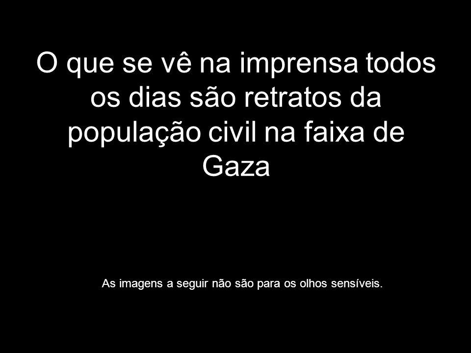 O que se vê na imprensa todos os dias são retratos da população civil na faixa de Gaza As imagens a seguir não são para os olhos sensíveis.