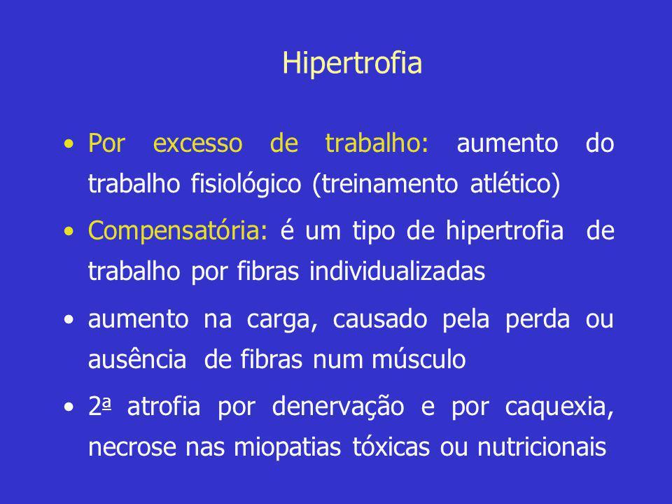 Hipertrofia •Por excesso de trabalho: aumento do trabalho fisiológico (treinamento atlético) •Compensatória: é um tipo de hipertrofia de trabalho por