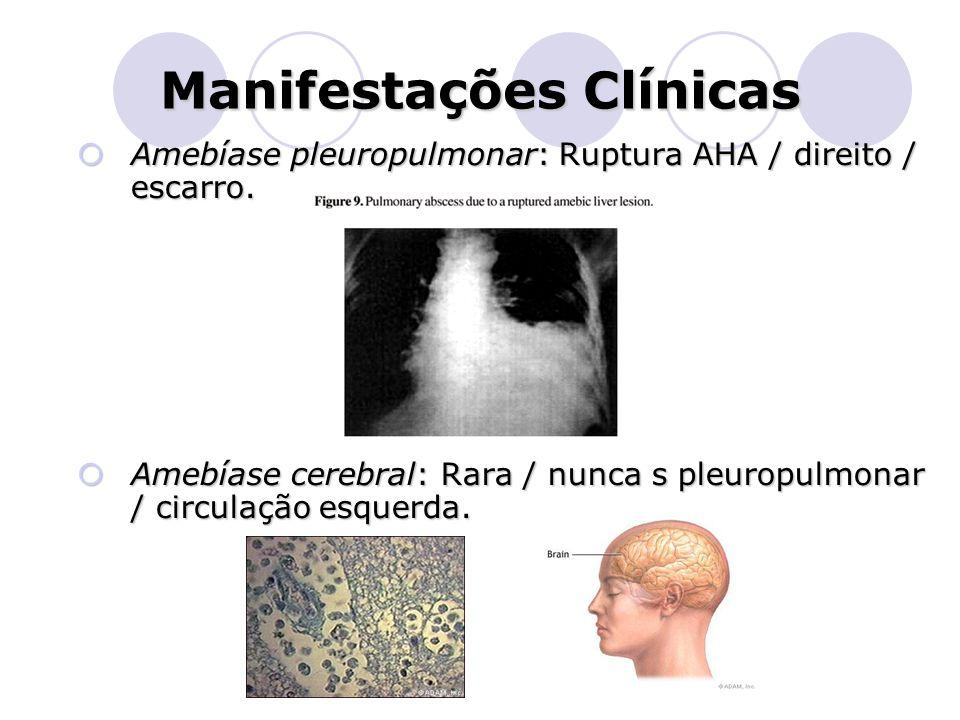 Manifestações Clínicas  Amebíase pleuropulmonar: Ruptura AHA / direito / escarro.  Amebíase cerebral: Rara / nunca s pleuropulmonar / circulação esq