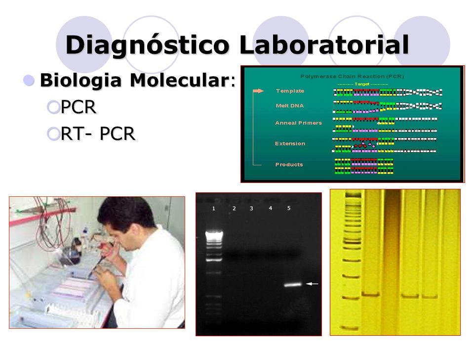 Diagnóstico Laboratorial  Biologia Molecular:  PCR  RT- PCR