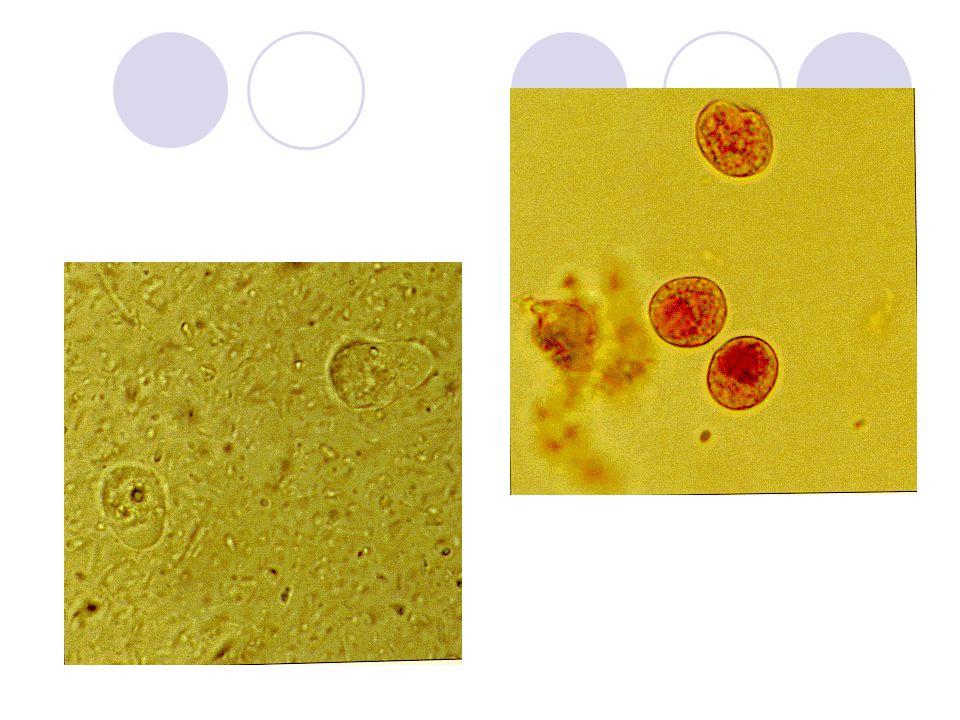 Endolimax nana  Wenyon & O´coonor: 1917;  Menor ameba encontrada no homem;  Trofozoíto: 10 – 12  m;  Cisto: 8  m;  Contem 4 núcleos pequenos;  Vive no cólon humano.