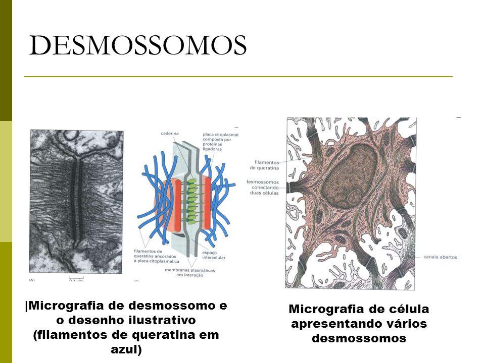 DESMOSSOMOS  Micrografia de desmossomo e o desenho ilustrativo (filamentos de queratina em azul) Micrografia de célula apresentando vários desmossomos