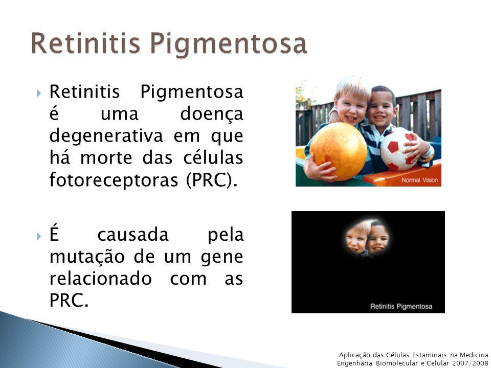 Aplicação das Células Estaminais na Medicina Engenharia Biomolecular e Celular 2007/2008  Retinitis Pigmentosa é uma doença degenerativa em que há morte das células fotoreceptoras (PRC).