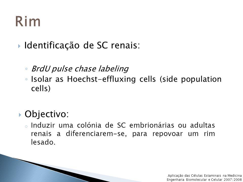  Identificação de SC renais: ◦ BrdU pulse chase labeling ◦ Isolar as Hoechst-effluxing cells (side population cells) Aplicação das Células Estaminais na Medicina Engenharia Biomolecular e Celular 2007/2008  Objectivo: o Induzir uma colónia de SC embrionárias ou adultas renais a diferenciarem-se, para repovoar um rim lesado.