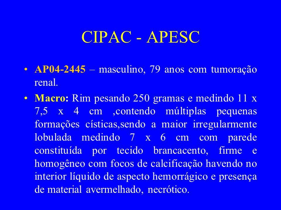 CIPAC - APESC •AP04-2445 – masculino, 79 anos com tumoração renal. •Macro: Rim pesando 250 gramas e medindo 11 x 7,5 x 4 cm,contendo múltiplas pequena