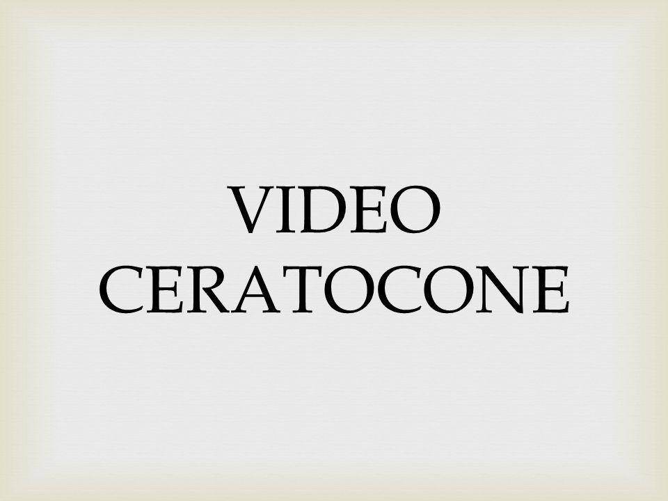 VIDEO CERATOCONE