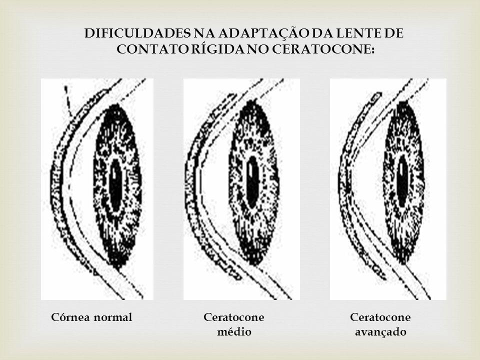 DIFICULDADES NA ADAPTAÇÃO DA LENTE DE CONTATO RÍGIDA NO CERATOCONE: Córnea normalCeratocone médio Ceratocone avançado