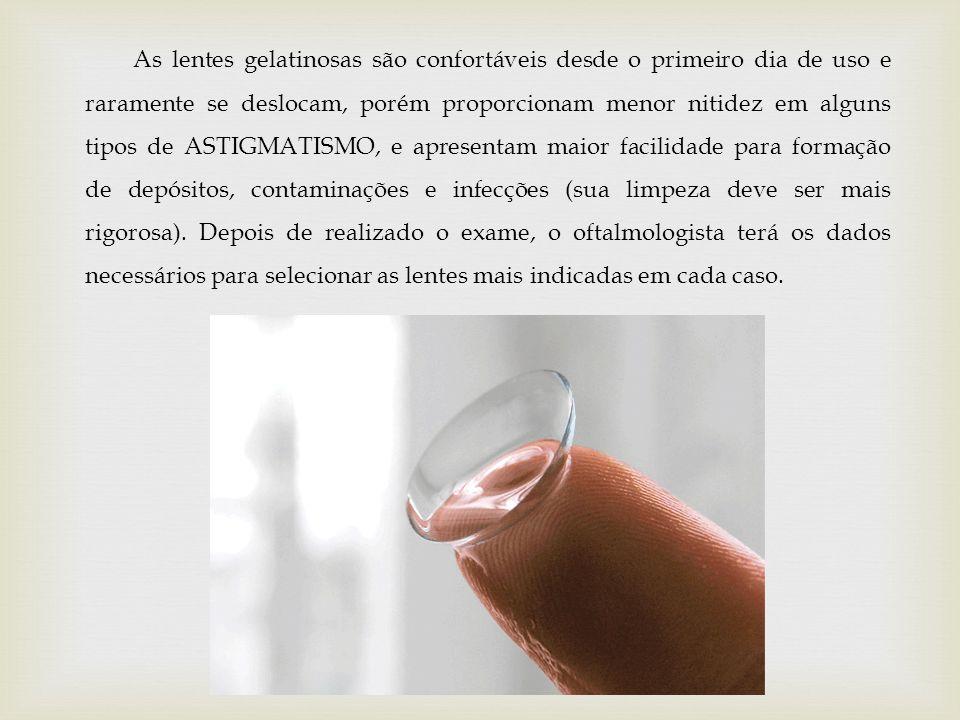 As lentes gelatinosas são confortáveis desde o primeiro dia de uso e raramente se deslocam, porém proporcionam menor nitidez em alguns tipos de ASTIGM