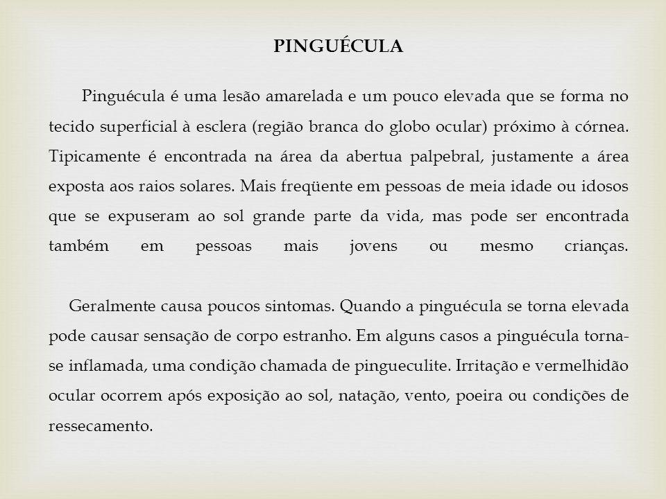 PINGUÉCULA Pinguécula é uma lesão amarelada e um pouco elevada que se forma no tecido superficial à esclera (região branca do globo ocular) próximo à