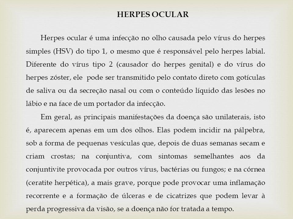 HERPES OCULAR Herpes ocular é uma infecção no olho causada pelo vírus do herpes simples (HSV) do tipo 1, o mesmo que é responsável pelo herpes labial.
