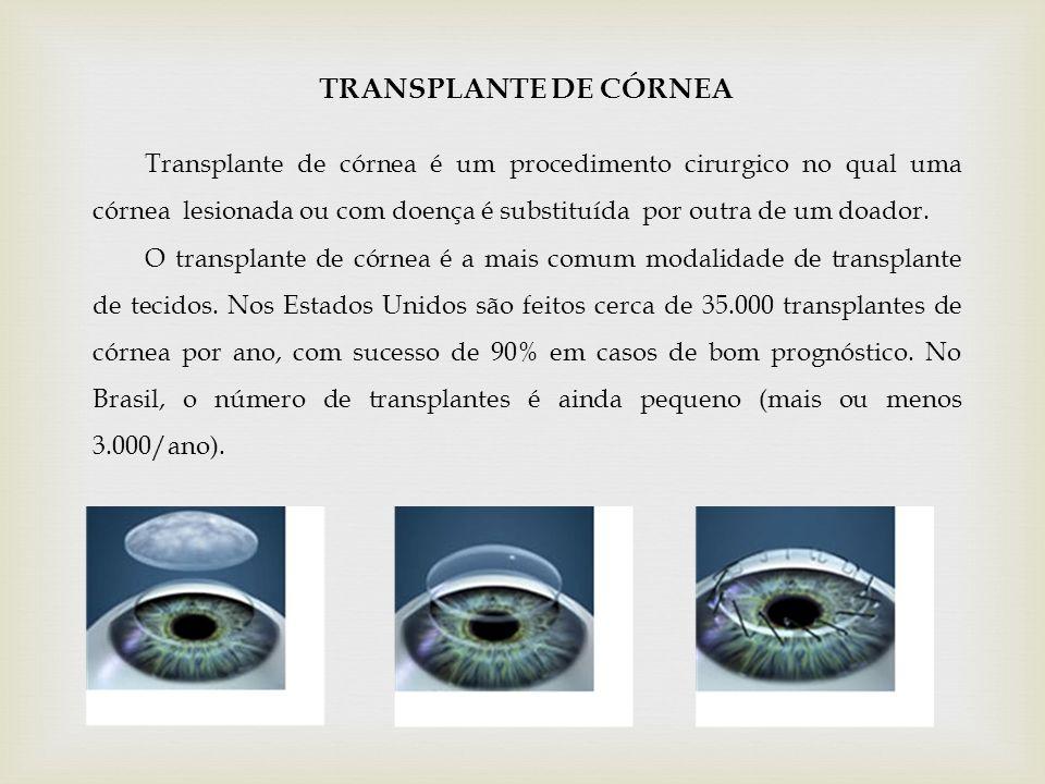 TRANSPLANTE DE CÓRNEA Transplante de córnea é um procedimento cirurgico no qual uma córnea lesionada ou com doença é substituída por outra de um doado
