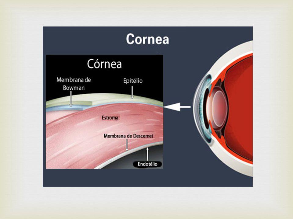 ÚLCERA DE CÓRNEA É a situação patológica onde há uma erosão na córnea, causada por uma infecção por bactérias, protozoários, fungos ou vírus, ou esta infecção posteriormente a ação de uma substância química, produzindo uma área da córnea sem epitélio, sua camada mais externa de cobertura.córneabactériasprotozoáriosfungosvírusepitélio São citados diversos fatores associados ao aparecimento de úlcera da córnea nos usuários de lentes de contato, sendo que o principal é o uso excessivamente prolongado, incluindo o hábito de dormir-se usando as lentes.