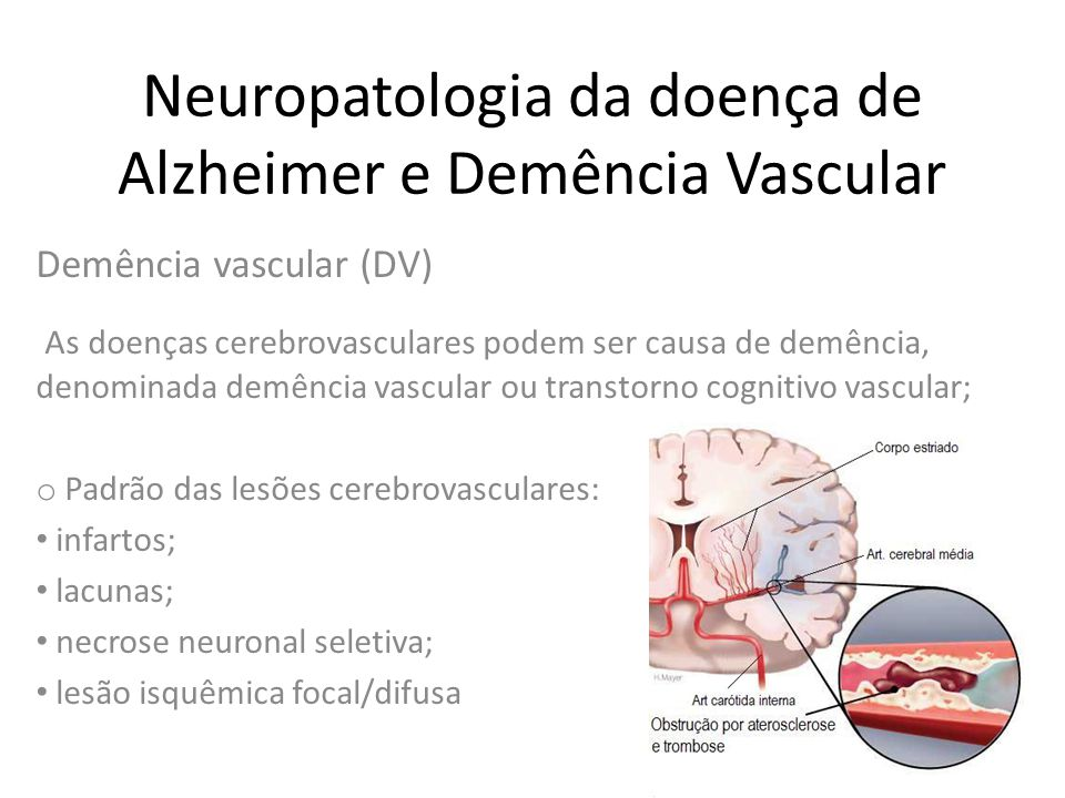 Neuropatologia da doença de Alzheimer e Demência Vascular Diagnóstico o Não existem ainda critérios neuropatológicos estabelecidos; *50-70% de pacientes com demência vascular do tipo puro; 30-50% de pacientes com demência mista;