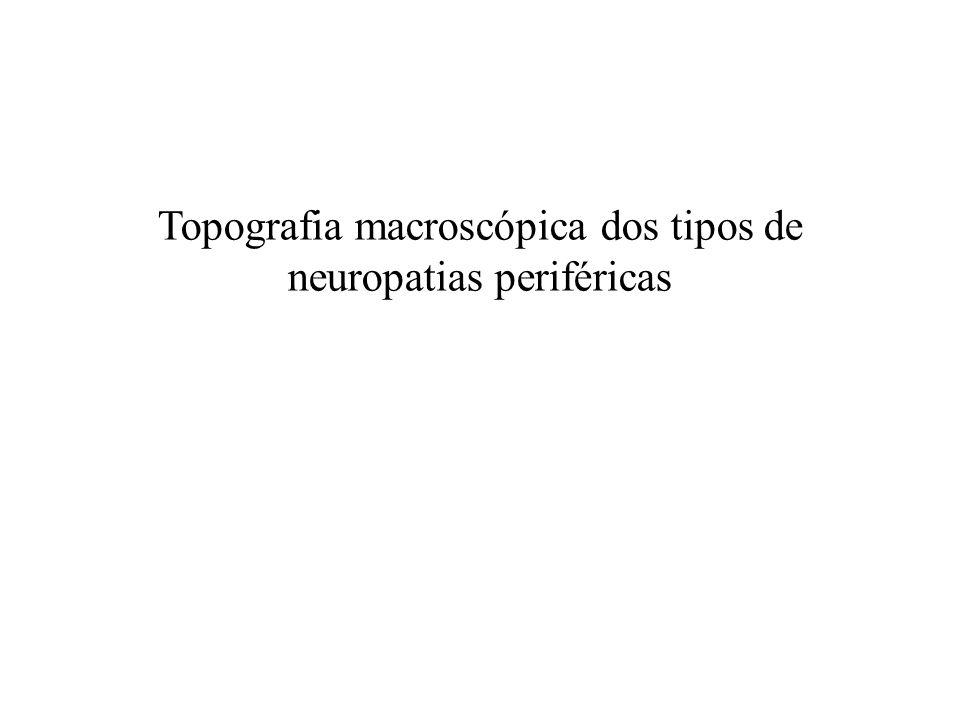 Topografia macroscópica dos tipos de neuropatias periféricas