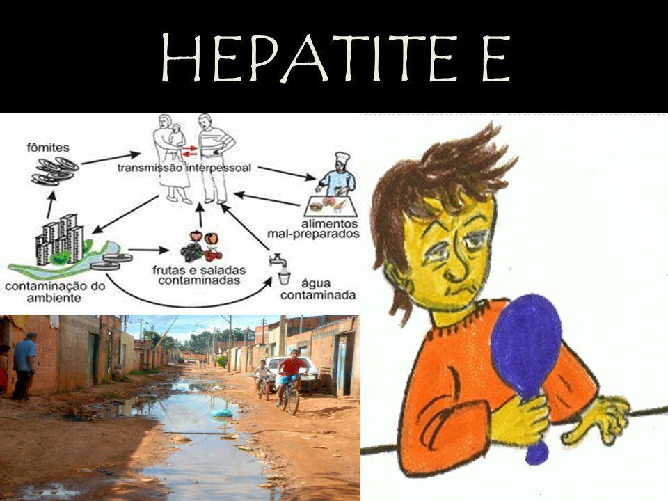 HEPATITE E