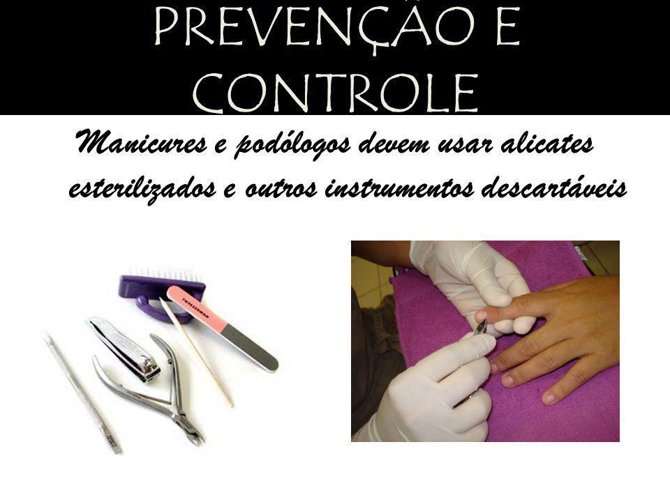 Manicures e podólogos devem usar alicates esterilizados e outros instrumentos descartáveis PREVENÇÃO E CONTROLE