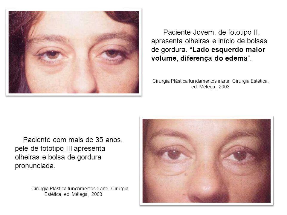 """Paciente Jovem, de fototipo II, apresenta olheiras e início de bolsas de gordura. """"Lado esquerdo maior volume, diferença do edema"""". Cirurgia Plástica"""