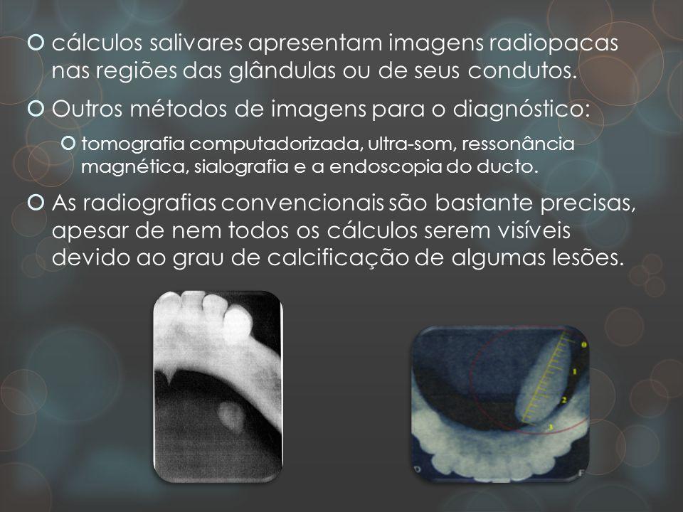  cálculos salivares apresentam imagens radiopacas nas regiões das glândulas ou de seus condutos.  Outros métodos de imagens para o diagnóstico:  to