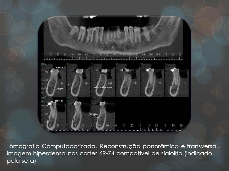 Tomografia Computadorizada. Reconstrução panorâmica e transversal. Imagem hiperdensa nos cortes 69-74 compatível de sialolíto (indicado pela seta)