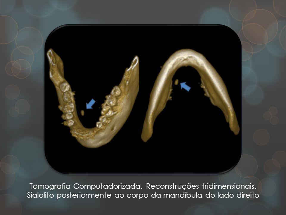 Tomografia Computadorizada. Reconstruções tridimensionais. Sialolito posteriormente ao corpo da mandíbula do lado direito