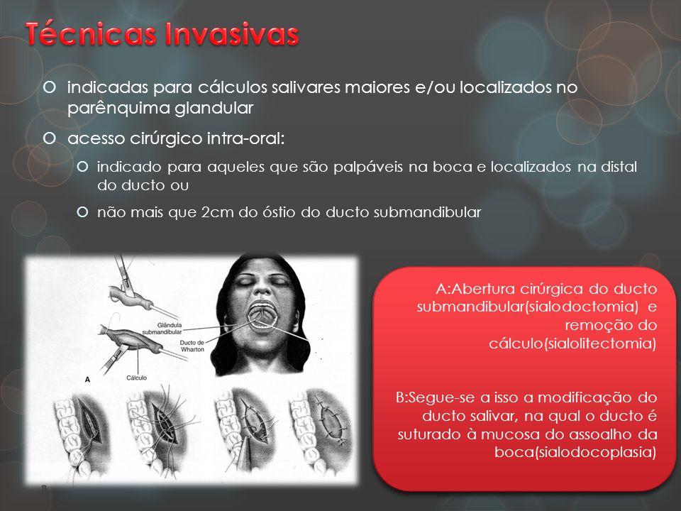  indicadas para cálculos salivares maiores e/ou localizados no parênquima glandular  acesso cirúrgico intra-oral:  indicado para aqueles que são pa