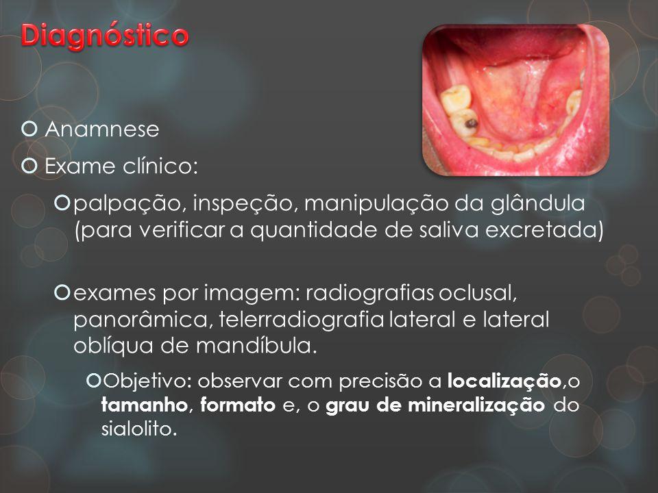  Anamnese  Exame clínico:  palpação, inspeção, manipulação da glândula (para verificar a quantidade de saliva excretada)  exames por imagem: radio