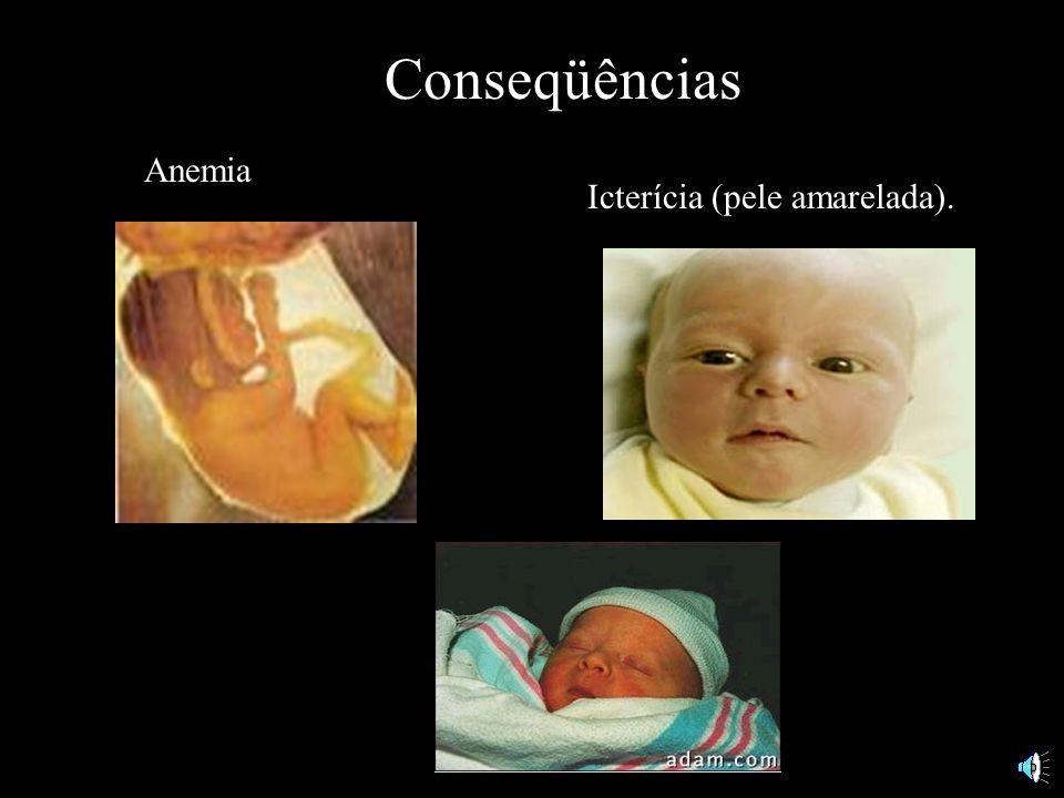 Conseqüências Destruição das hemácias fetais.
