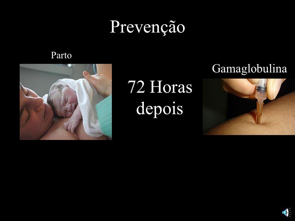 Prevenção Gamaglobulina Parto 72 Horas depois