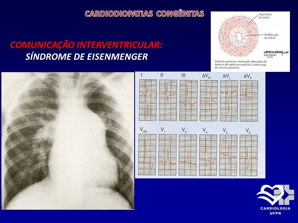 COMUNICAÇÃO INTERVENTRICULAR TRATAMENTO: Clinico: Sintomas de hiperfluxo pulmonar podem ser controlados temporariamente com DIURÉTICOS.