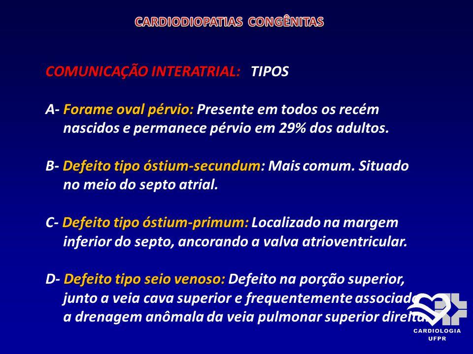 COMUNICAÇÃO INTERATRIAL: COMUNICAÇÃO INTERATRIAL: TIPOS FORAME OVAL PÉRVIO ÓSTIUM SECUNDUM SEIO VENOSO ÓSTIUM PRIMUM