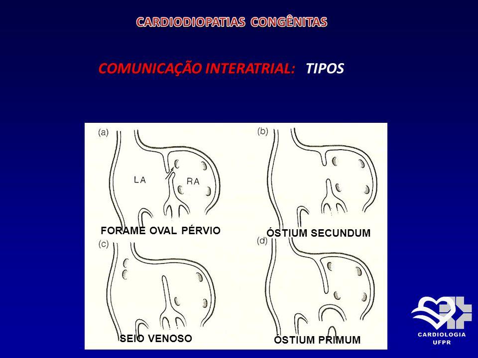 COMUNICAÇÃO INTERATRIAL COMUNICAÇÃO INTERATRIAL Alterações hemodinâmicas: Sobrecarga de volume para câmaras direitas