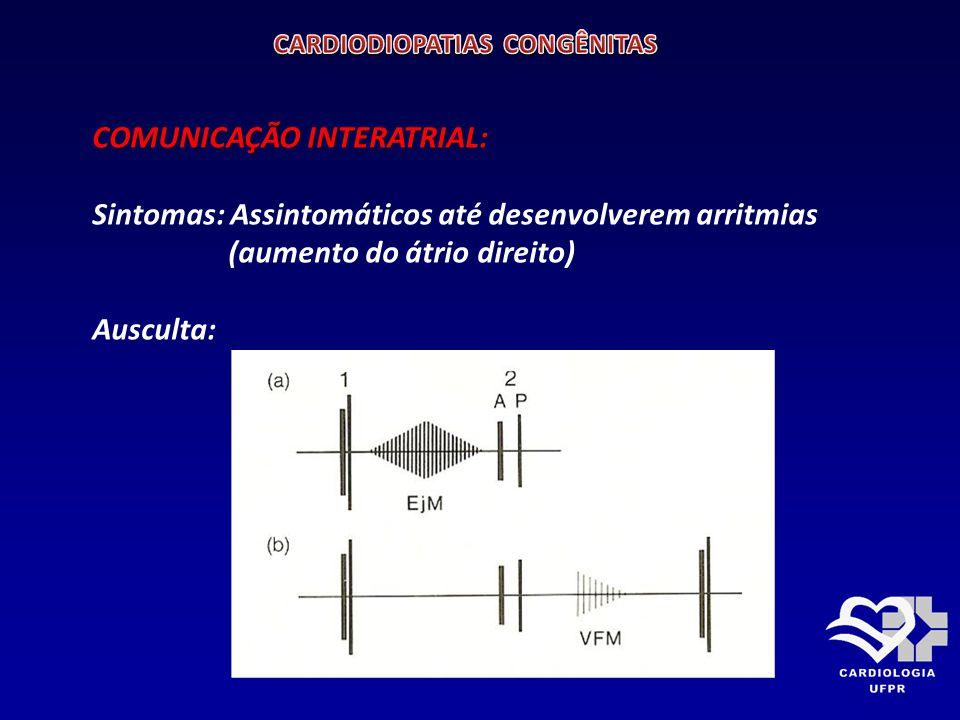 COMUNICAÇÃO INTERATRIAL: COMUNICAÇÃO INTERATRIAL: ELETROCARDIOGRAMA