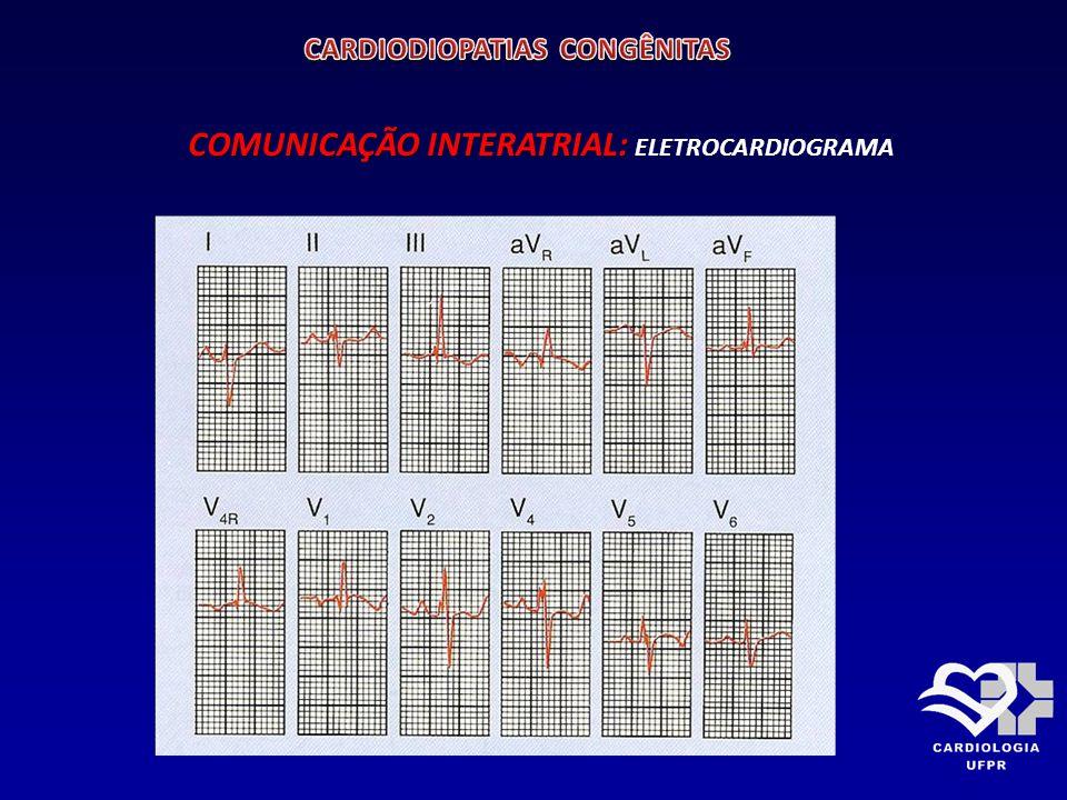 COMUNICAÇÃO INTERATRIAL: COMUNICAÇÃO INTERATRIAL: RX DE TÓRAX PA