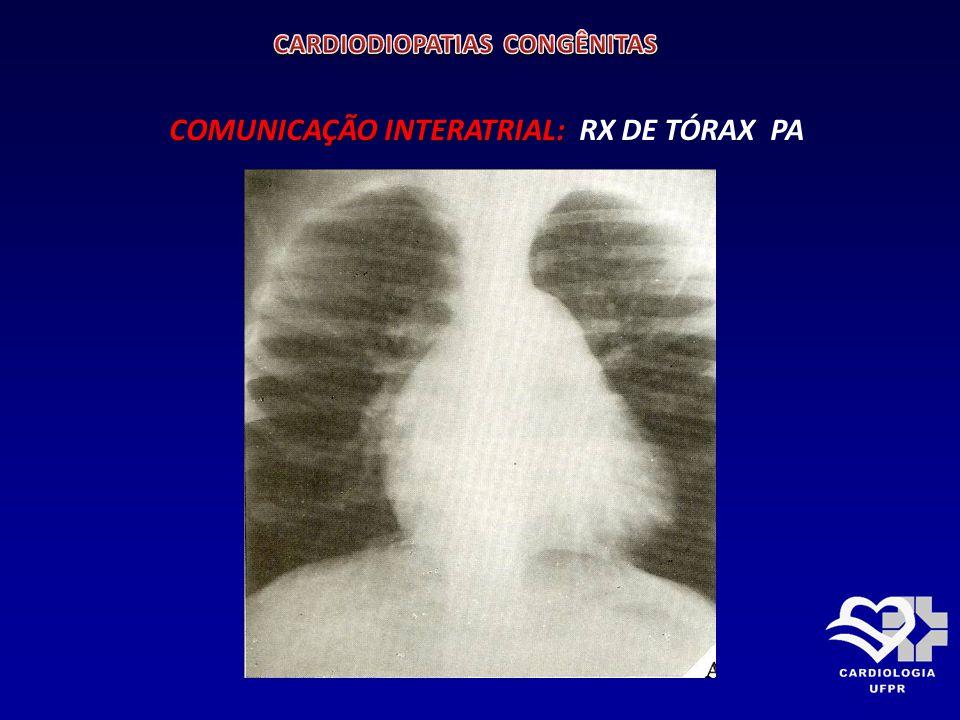 COMUNICAÇÃO INTERATRIAL: COMUNICAÇÃO INTERATRIAL: RX DE TÓRAX PERFIL