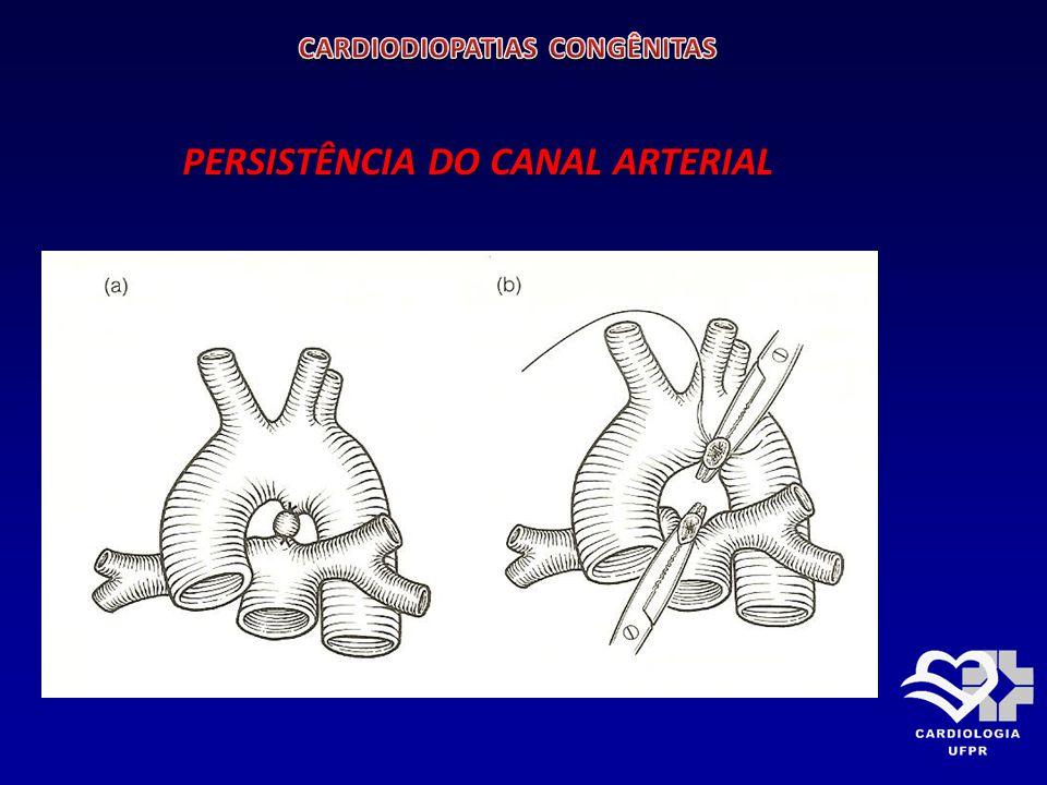 TETRALOGIA DE FALLOT Consiste: CIV Dextroposição da aorta Dextroposição da aorta Estenose pulmonar Estenose pulmonar Hipertrofia do ventrículo direito.