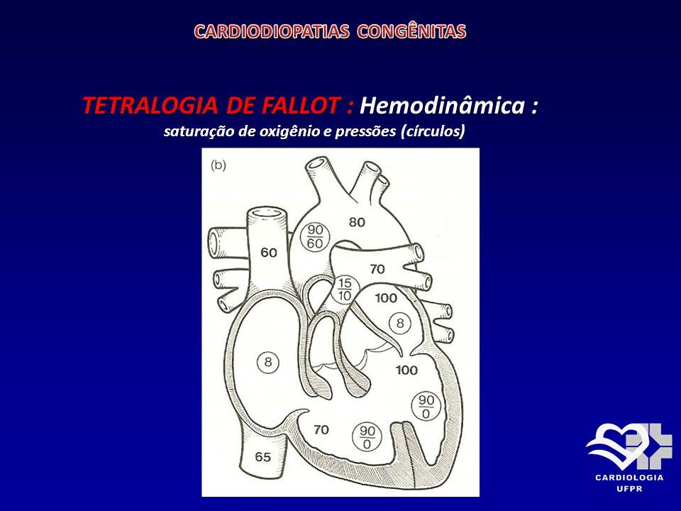 TETRALOGIA DE FALLOT Hemodinâmica: A CIV é não restritiva, pressões dos ventrículos iguais.