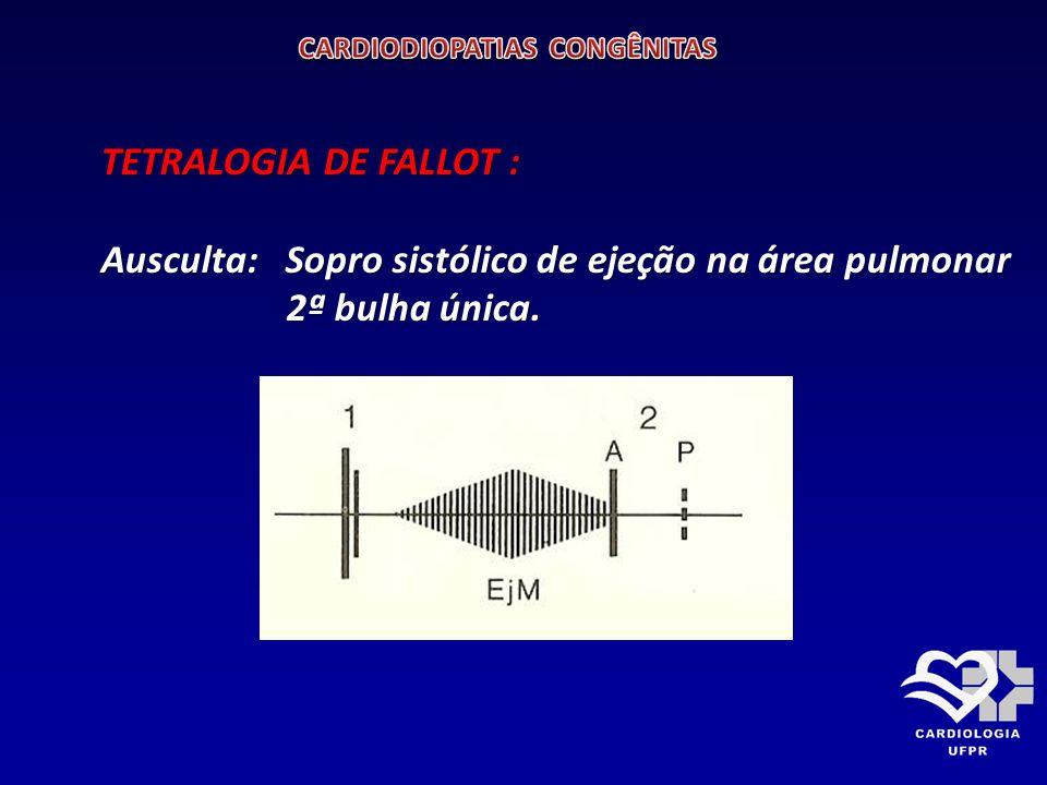TETRALOGIA DE FALLOT ELETROCARDIOGRAMA Ondas P proeminentes e hipertrofia ventricular direita