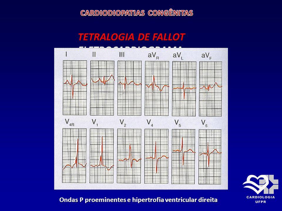 TETRALOGIA DE FALLOT RX TÓRAX PA RX TÓRAX PA Coração em forma de bota com arco aórtico à direita e fluxo pulmonar pouco 