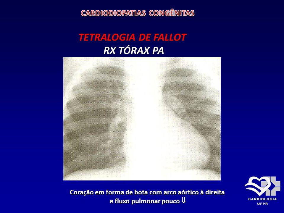 TETRALOGIA DE FALLOT ECOCARDIOGRAMA ECOCARDIOGRAMA