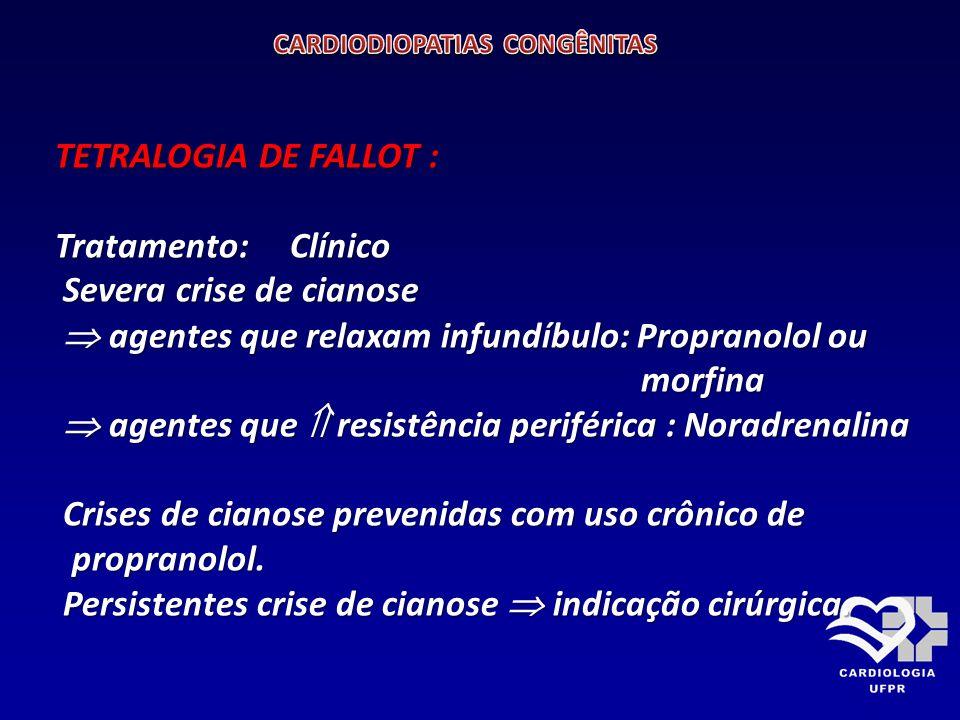 TETRALOGIA DE FALLOT : Tratamento: Cirúrgico. BLALOCK TAUSSING