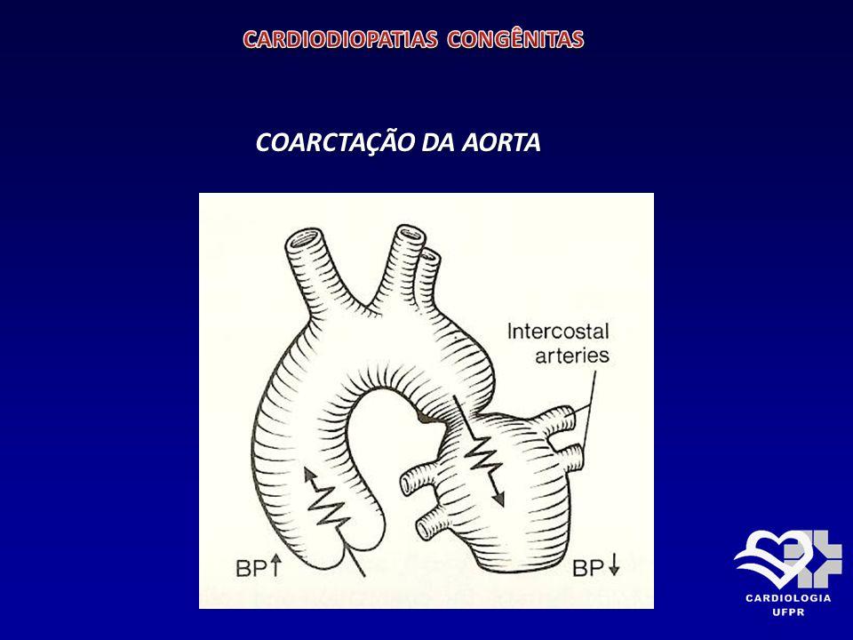 TRANSPOSIÇÃO DOS GRANDES VASOS DA BASE Situs solitus, concordância átrio-ventricular, discordância ventrículo-arterial.